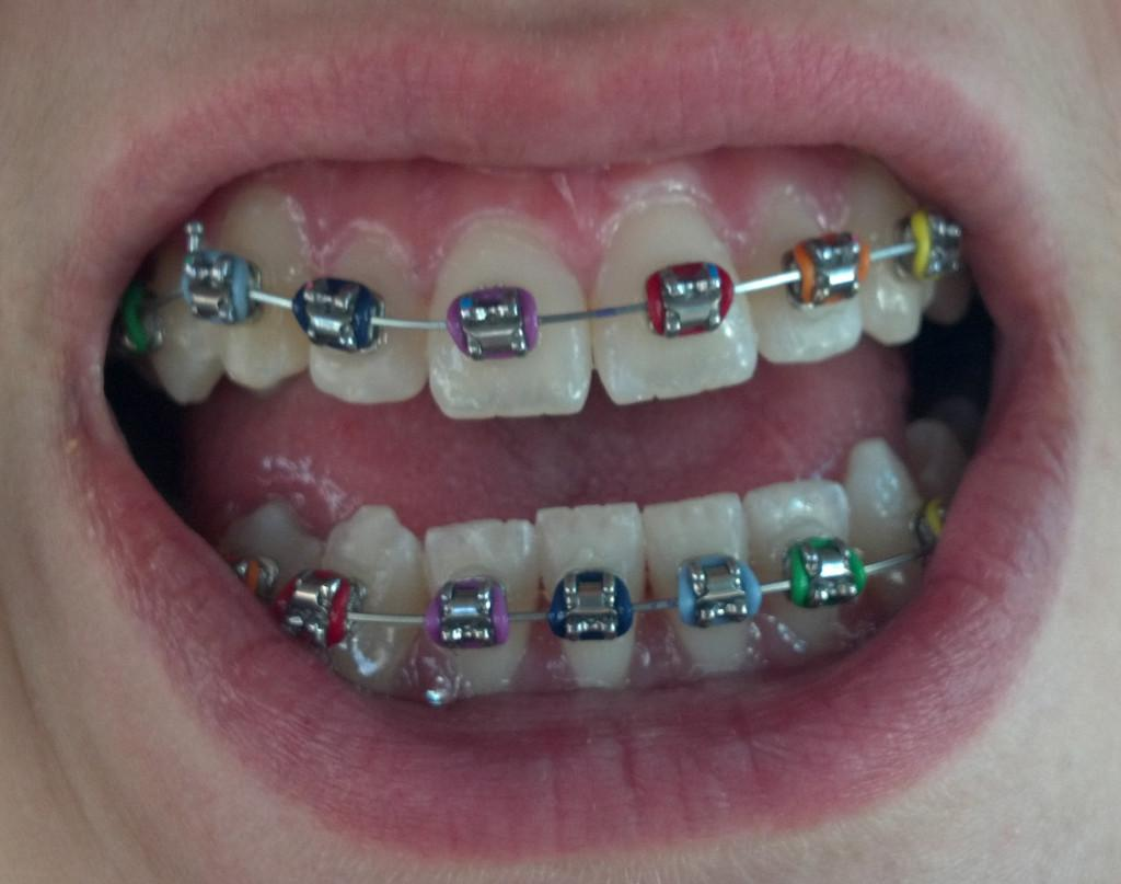 Even though braces aren't fun, you can make the best of them. Have no shame and get bright colors.