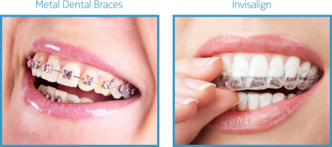 Image Courtesy of DefinitionDental.